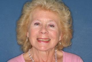 Julie before
