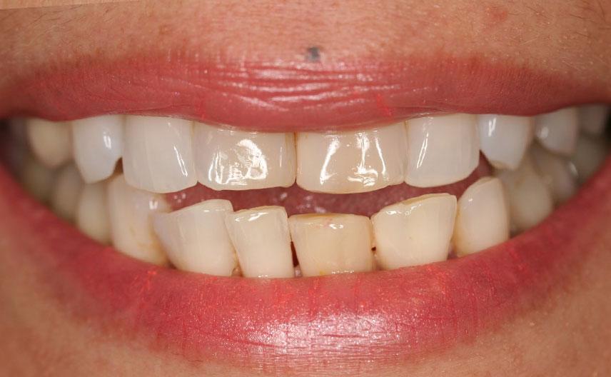 Smile Gallery - Portmore Dental
